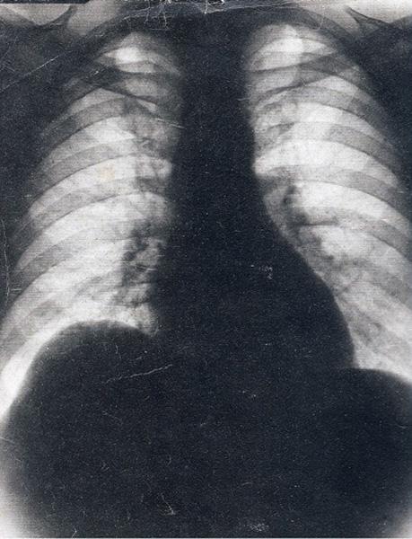 Esta fue la radiografía que se convirtió en la falsa prueba necesaria para la liberación de Perón